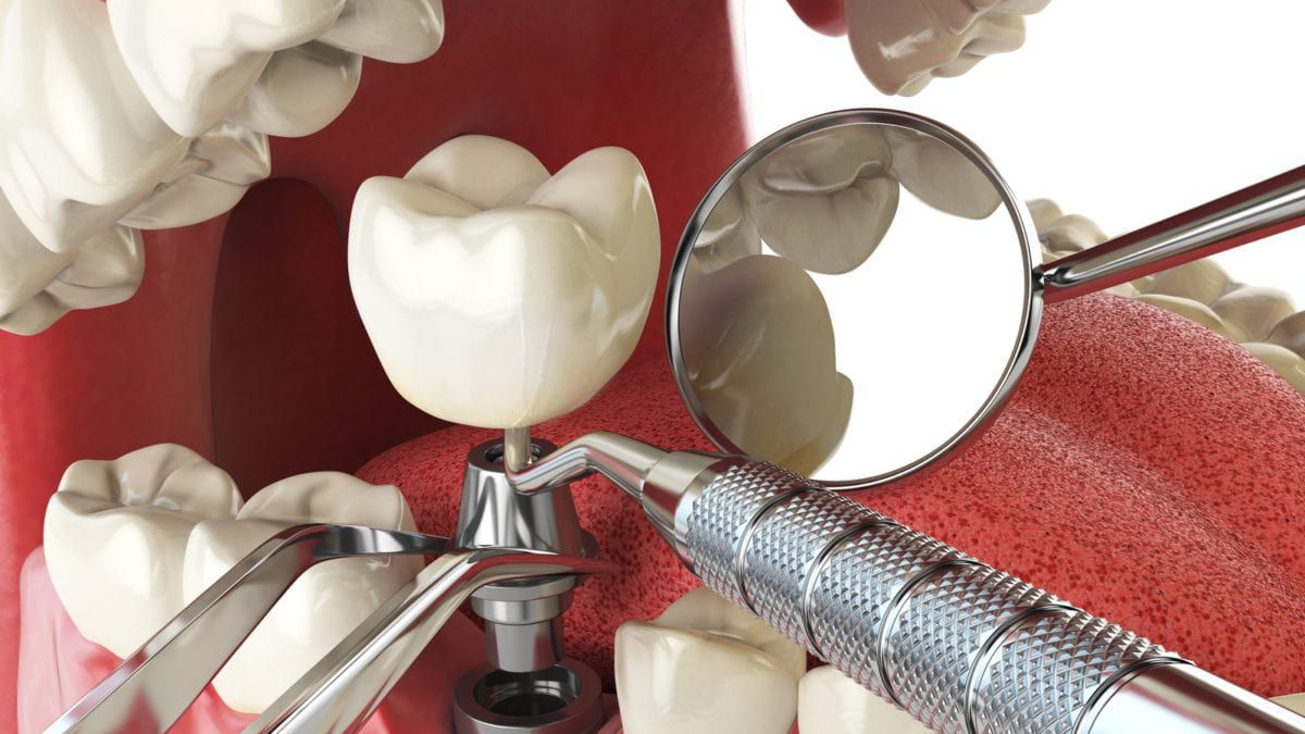 Rendering of a Dental Implant in Place