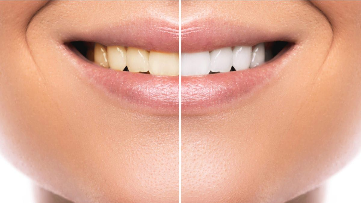 Comparison of before/after teeth whitening