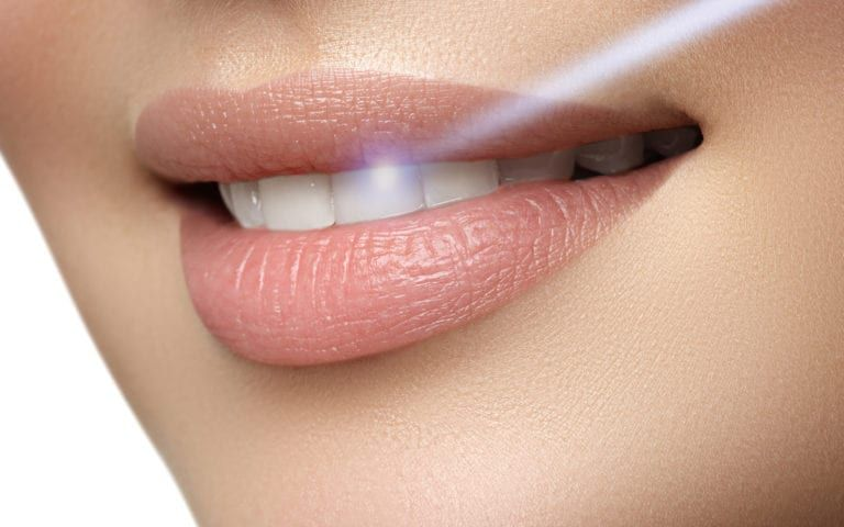 Teeth receiving laser treatment