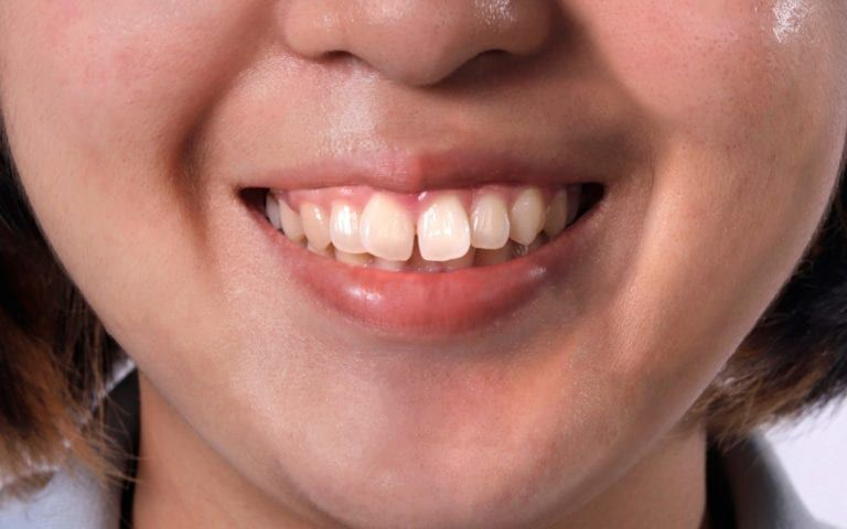 Smiling Person With Misaligned Teeth